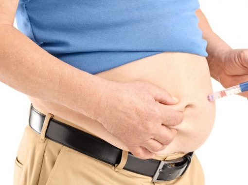 Early weight-loss surgery may improve type 2 diabetes