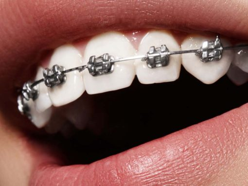teeth brace care tips
